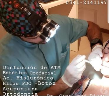 Fotos de DISFUNCION TEMPOROMANDIBULAR Y ATM. ROSARIO 03412141197