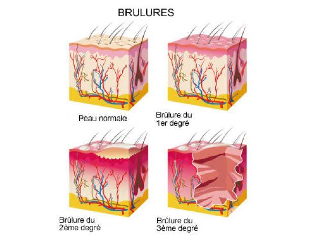 Fotos para LAVANDA extrato puro para queimaduras pele, ferimentos, etc.