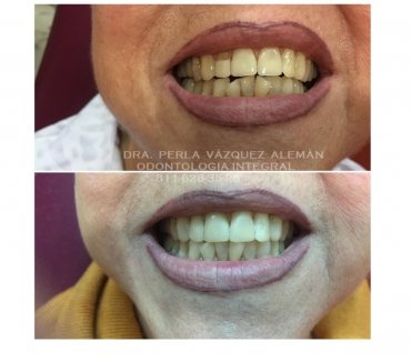 Fotos de DENTISTA GENERAL, CLINICA DENTAL EN MONTERREY