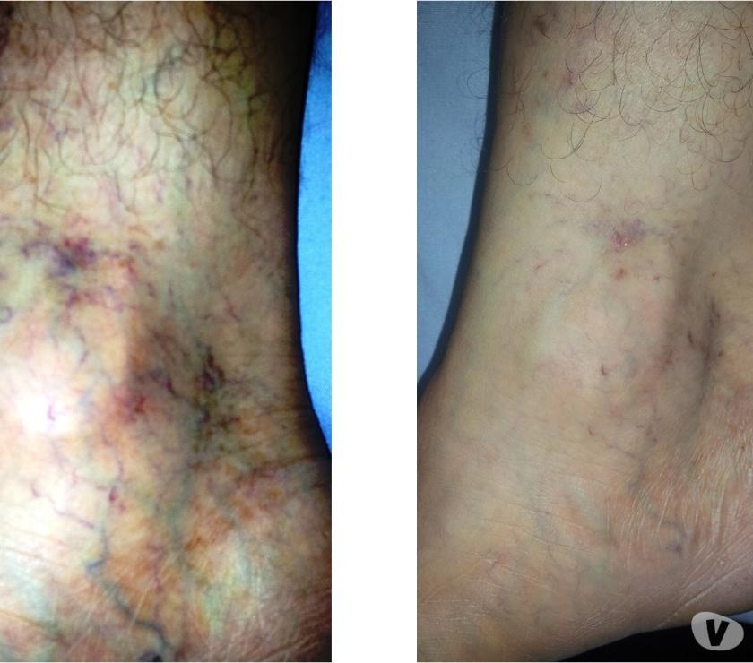 Fotos de centro laser medico, tratamientos con laser