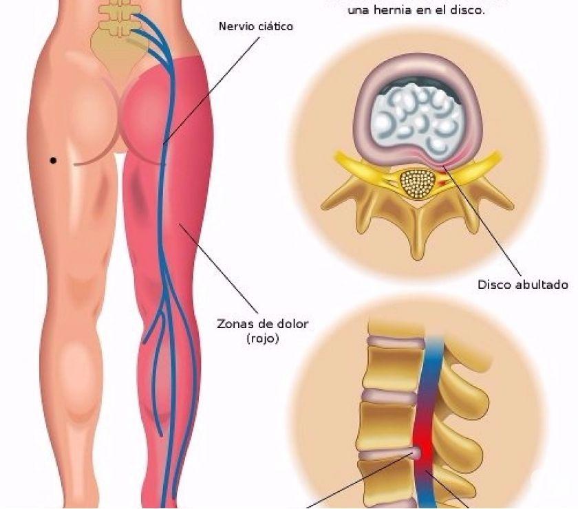 Fotos de Cómo curar el dolor ciatico